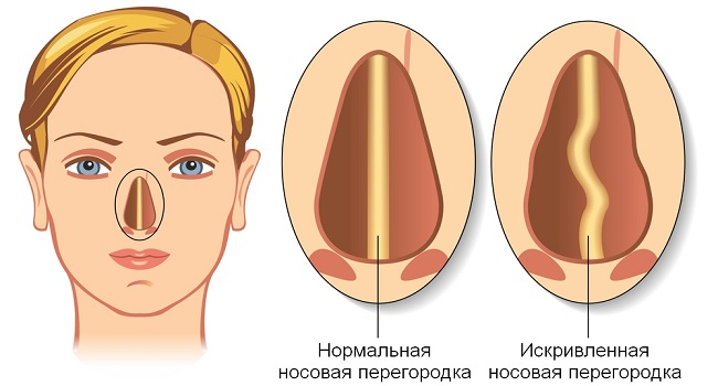 Нормальная и искривленная перегородка носа