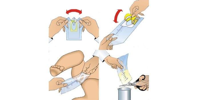Инструкция по применению мочеприемника