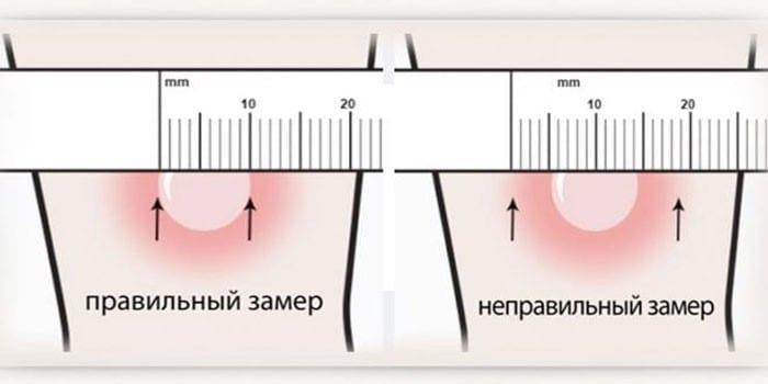 Измерение размера папулы сантиметром