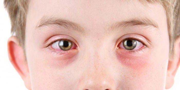 Проявления конъюнктивита на глазах ребенка