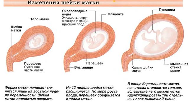 Изменения шейки матки во время беременности