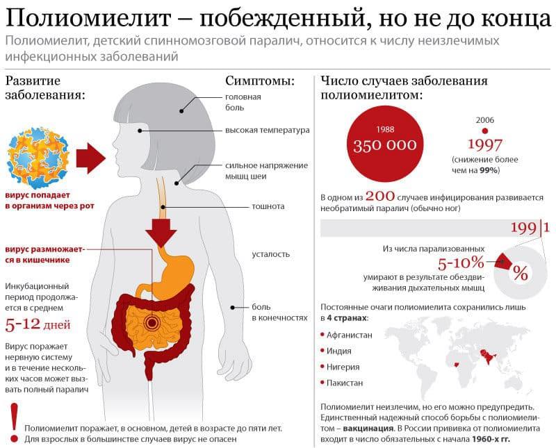 Что такое полиомиелит