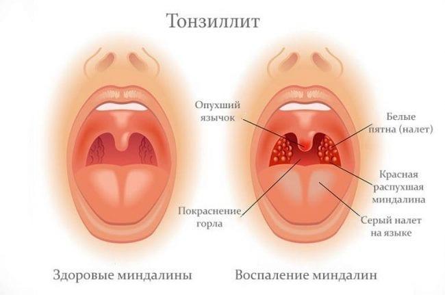 Причина ринофарингита - тонзиллит
