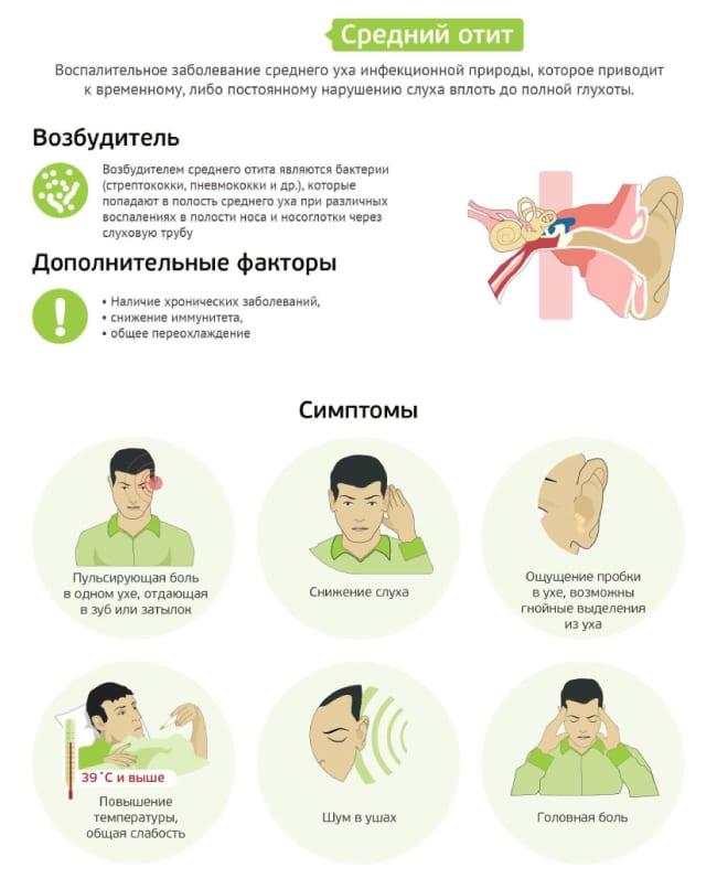 Симптомы и возбудитель среднего отита