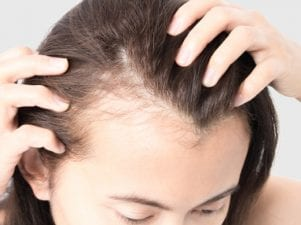 10 научно обоснованных способов предотвратить выпадение волос