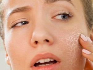 20 привычек, которые делают сухую кожу еще хуже