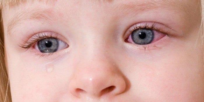 У ребенка покраснели и слезятся глаза