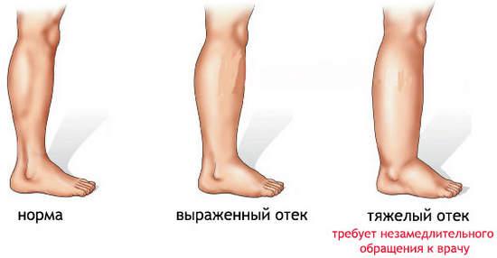 Отечность ног при беременности