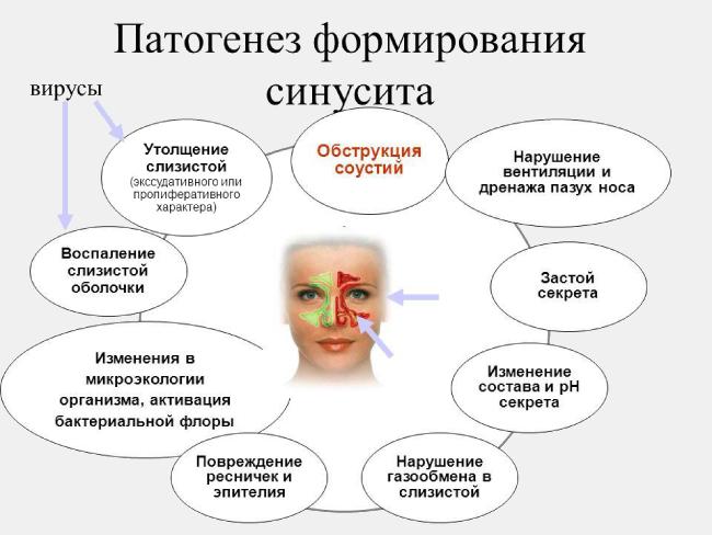 Патогенез формирования синусита