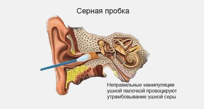 Неправильная чистка уха ватной палочкой