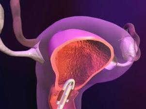 Внутриматочная спираль от беременности