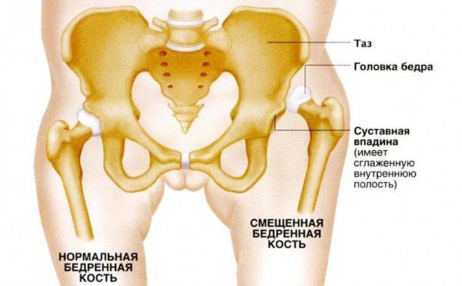 Смещение бедренной кости