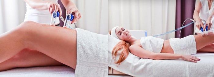 Вакуумный массаж беременной женщине