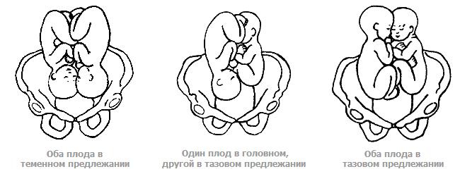 Предлежания плода при многоплодной беременности