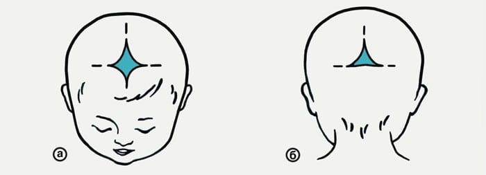 Схема родничков на голове