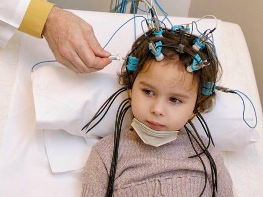 Энцефалограмма головного мозга ребенку: показывает расшифровка ЭЭГ, как подготовить малыша