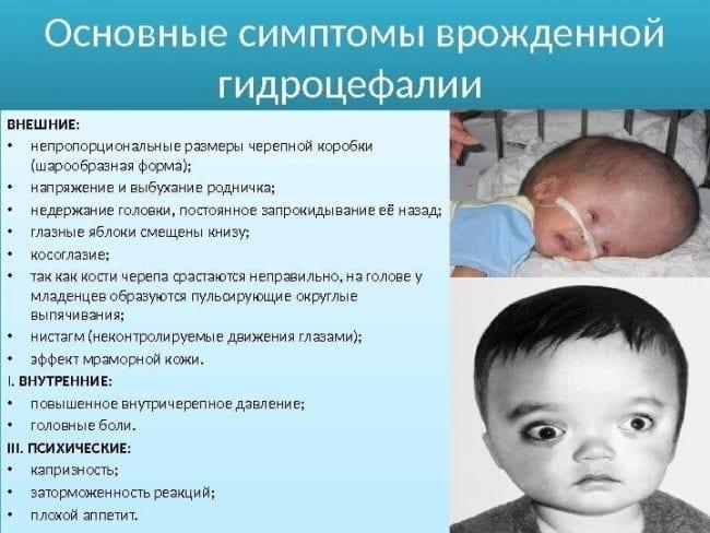 Симптомы врожденной гидроцефалии