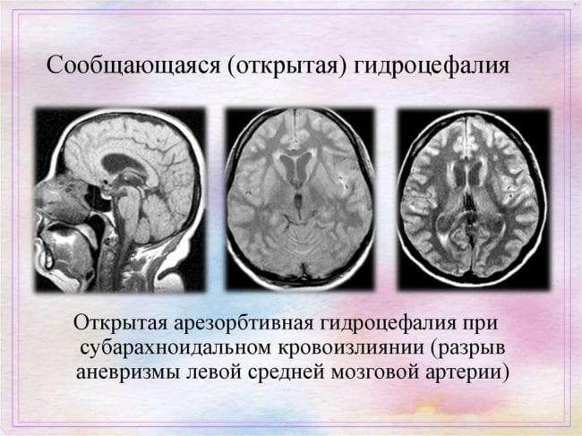 Диагностика открытой гидроцефалии