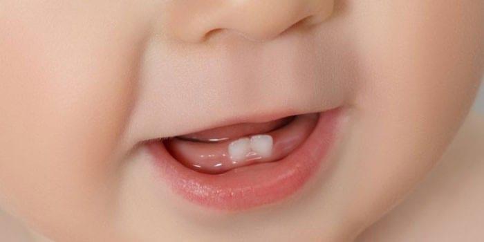 Два нижних зуба у малыша