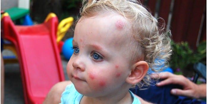 Следы от комариных укусов на лице у ребенка