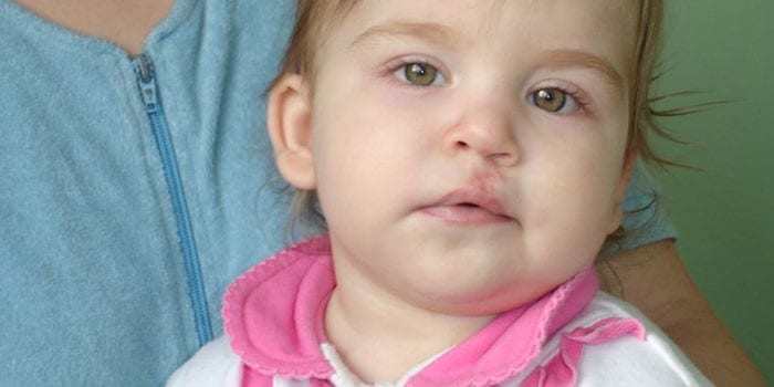 Ребенок после операции по коррекции заячьей губы