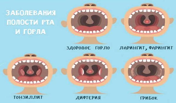Доктор Комаровский о правильном и неправильном лечении ОРВИ