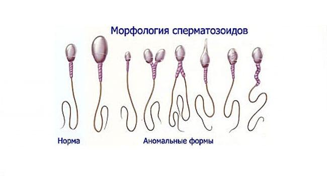 Норма и аномалии сперматозоидов