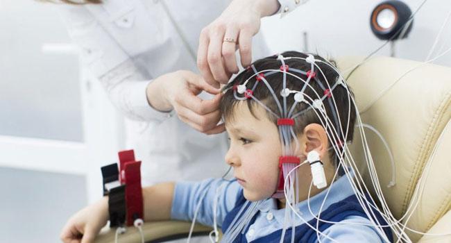Ребенку делают электроэнцефалографию