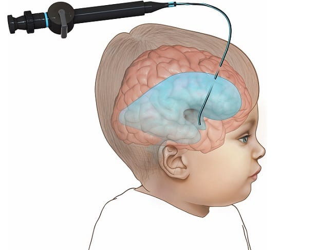 Вентрикулостомия