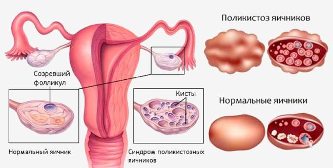Поликистоз яичников на схеме