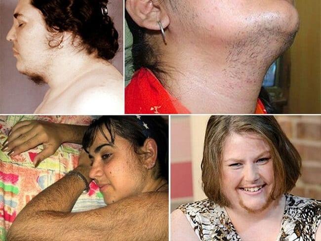 Проявление гиперандрогении у женщин
