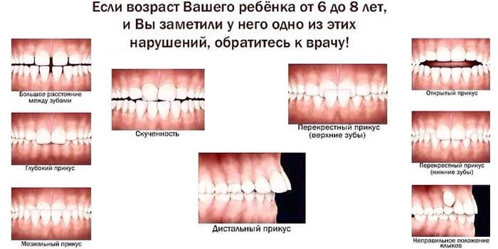 Во сколько выпадают молочные зубы у детей - норма и причины отклонений