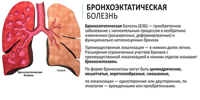 Бронхоэктатическая болезнь