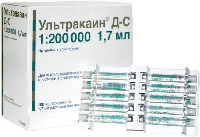 Обезболивающее Ультракаин