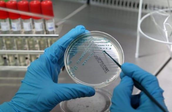 Кокки в мазке — Обнаружены кокки в мазке, лечение и профилактика