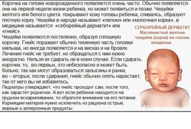 Серборея у младенцев