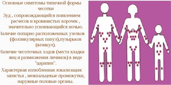 Симптомы и локализация чесотки