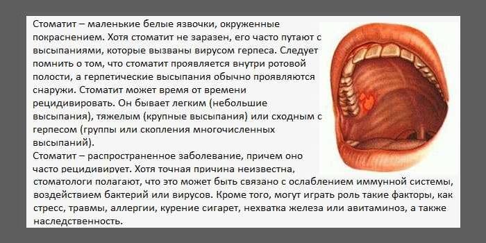 Что такое стоматит