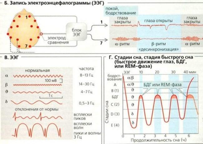 Показания электроэнцефалограммы