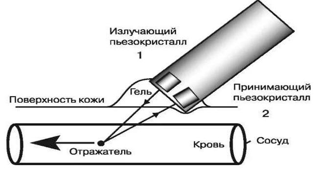 Принцип действия доплер УЗИ