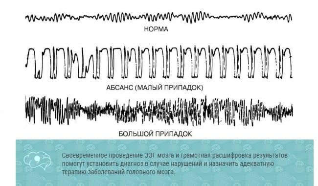 Отклонения альфа-волны