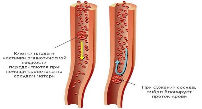 Эмболия амниотической жидкости