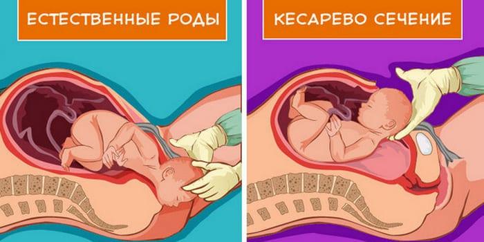 Естественные роды и кесарево сечение