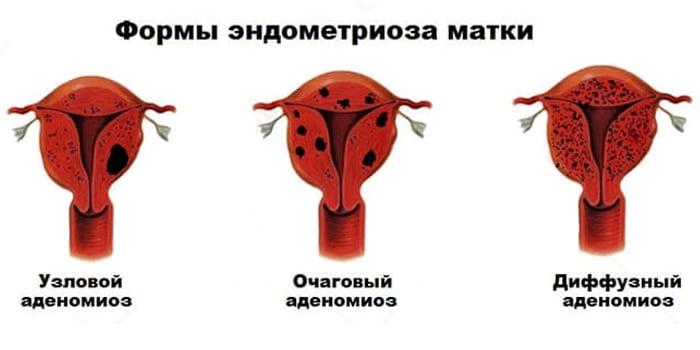Формы эндометриоза