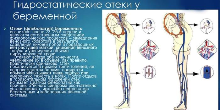 Гидростатические отеки у беременных