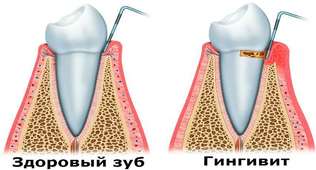 Здоровый зуб и пораженный гингивитом