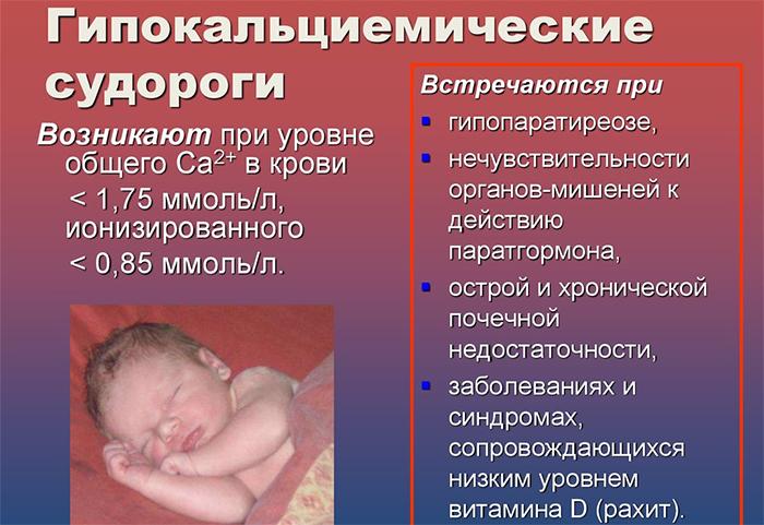 Гипокальциемические судороги у младенцев