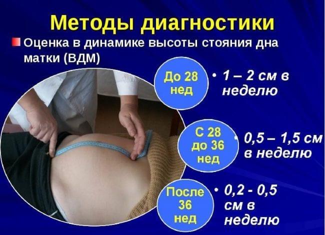Диагностика - оценка ВДМ