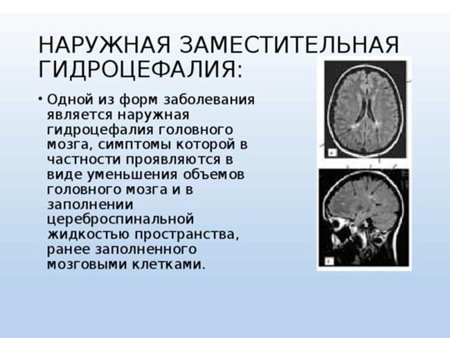 Наружная гидроцефалия