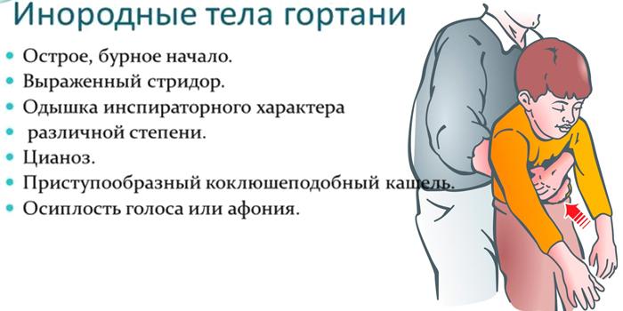 Инородные тела в гортани